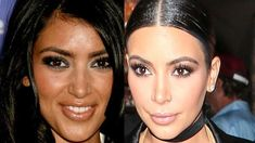 You wouldn't recognise Kim Kardashian back in the day! Heat have put together her surgery timeline for your pleasure- see how the star has changed! Khloe Kardashian Plastic Surgery, Kim Kardashian Before, Kris Jenner Plastic Surgery, Kim Before And After, Surgery Doctor, Plastic Surgery Procedures, Under The Knife, After Surgery, Skin Care Tips