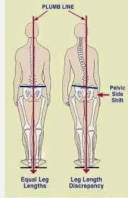 ganglion impar block per dolore pelvico