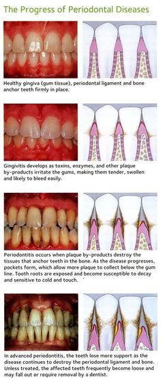 The Progress of Periodontal Diseases - see the mouth body connection infographics also in our boards. Pediodontal disease is a massive issues which is also massively ignored by the general population. If not addressed early, not only will be effect the teeth but will also affect the entire body #dental#emerceny#treament#aborad#