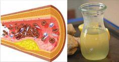 Este remédio natural é sensacional! Ele tem muitos benefícios. Para começar, é excelente para aumentar a imunidade e limpar as artérias, sendo, por i…