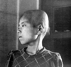 This 11-year-old Japanese girl, a surivor of the atomic bombing of Hiroshima, Japan, suffered hair loss, fever, and bleeding gums from radiation poisoning, 1945