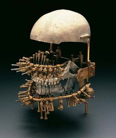 Model used for studying and treatment of jaw fractures. From the Institute of Dentistry, University of Zurich, 1900-1930