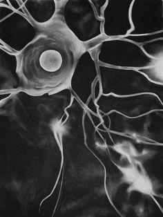 Neurologia é a especialidade médica que trata dos distúrbios estruturais do sistema nervoso. Especificamente, ela lida com o diagnóstico e tratamento de todas as categorias de doenças que envolvem os sistemas nervoso central, periférico e autônomo, incluindo os seus revestimentos, vasos sanguíneos, e todos os tecidos efetores, como os músculos.O correspondente cirúrgico da especialidade é a neurocirurgia. O neurologista, médico que se especializou em neurologia, é treinado para investigar…
