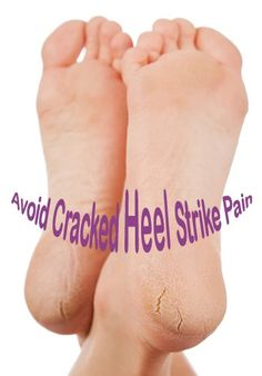 Cracked heels are the first signs of sheer neglect of foot care. Ugly and embarrassing, it is caused by dryness, dehydration, soaking feet in hot bath for too long, not moisturizing etc. It may be the first sign of diabetes and obesity…