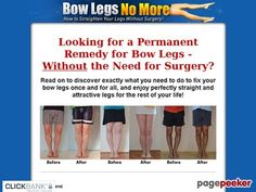 (adsbygoogle = window.adsbygoogle || []).push();     (adsbygoogle = window.adsbygoogle || []).push();  Bow Legs No More – How to Straighten Your Legs Without Surgery!    http://www.bowlegsnomore.com/ review     (adsbygoogle = window.adsbygoogle || []).push();  12.8%...