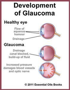 Eye with glaucoma