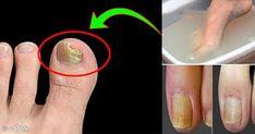 Uzun süre havasız kalan ayaklarınız terler ve mantarlar için elverişli bir ortam oluşur. Bir kere mantar ayağa yerleştikten sonra kurtulması oldukça zordur. Piyasada satılan ve yüzlerce lira aldığımız ilaçlar ancak kontrol altına alabiliyor ve hayatımızı oldukça zora sokuyor. Aslında, sadece doğal y Home Remedies, Natural Remedies, Hair Cutting Techniques, Colored Hair Tips, Stop Working, Nail Fungus, Hair Loss Treatment, Fungi, Nail Care