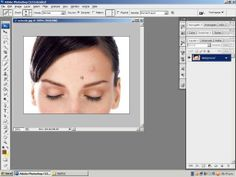 Como Quitar Imperfecciones del Rostro Adobe Photoshop - http://solucionparaelacne.org/blog/como-quitar-imperfecciones-del-rostro-adobe-photoshop/