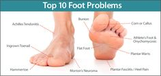 Check out our list of the top 10 foot problems: Achilles tendonitis, bunion, corn or callus, athlete's foot & onychomycosis, flat foot, ingrown toenail, plantar warts, hammertoe, Morton's neuroma, plantar fasciitis / heel pain