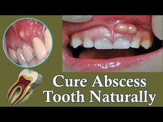 A natural cure for tooth abscess does not mean avoiding a dentist but if you prefer a natural cure over the expense of a dental professional, then I believe Teeth Health, Dental Health, Oral Health, Healthy Teeth, Gum Health, Health Facts, Tooth Pain Relief, Tooth Infection, Natural Remedies