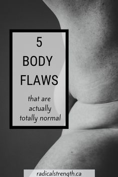 5 Body Flaws That Ar