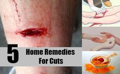 NEWS ABOUT HEALTH: Top 5 Home Remedies For Minor Cuts