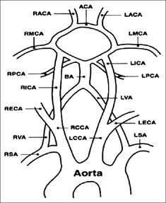 Figure 1: Vascular anatomy showing common carotid artery, internal carotid artery, and vertebral artery  Evaluation of carotid arteries in stroke patients using color Doppler sonography: A prospective study conducted in a tertiary care hospital in South India Fernandes M, Keerthiraj B, Mahale AR, Kumar A, Dudekula A - Int J App Basic Med Res