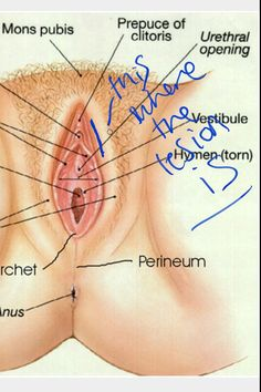 Aunt Vadge: mysterious red, raised lesion in between my labia A woman has http://www.allthingsvagina.com/aunt-vadge-mysterious-red-raised-lesion-in-between-my-labia/
