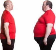 1000 images about best weight loss surgery on pinterest weight loss