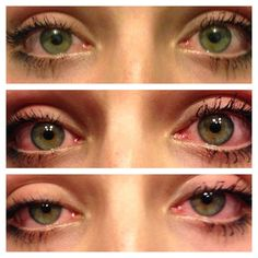 marijuana before and after and then back to before ( marijuana cannabis ) Es Der Clown, Puff And Pass, Stoner Girl, Smoking Weed, Red Eyes, Ganja, Trippy, Photos, Aesthetic Eyes