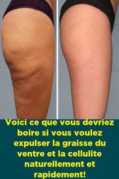 Cellulite, Detox, France, Gym, Voici, Sports, Stuff Stuff, Other, Hs Sports