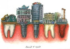 A picture is worth a thousand words Dentist Art, Dental Life, Porcelain Veneers, Teeth Health, Oral Surgery, Orthodontics, Drawings, Illustration, Artist