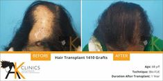 Hair Transplant Surgery Before and After 1410 Grafts by Dr Kapil Dua - Hair Loss Hair Transplant In India, Hair Transplant Results, Hair Transplant Surgery, Before After Hair, Dramatic Hair, Hair System, Hair Falling Out, Hair Starting, Trends