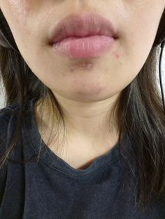 [Skin concerns] PIH and acne scar on chin. Used to use physcial extractor on the whiteheads and acnes. Any stronger and faster product recs?