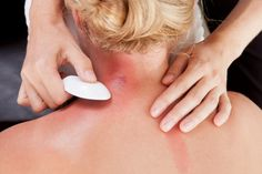 Gua sha: Scraping of back is said to relieve pain and ease other medical problems