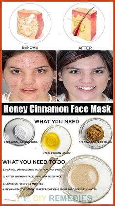 Homemade Acne Remedies - How to Get Rid of Acne Scars? *** Continue with the details at the image link. #AcneAndOilySkin