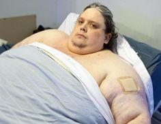 World's fattest man Keith Martin dies, aged 44 Calories A Day, Fat Man, Weight Loss Surgery, World, Amazing People, Daily Mail, Battle, Medicine, Places