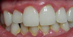 ΤΟ ΞΕΡΑΤΕ ΑΥΤΟ; Να πως θα αφαιρέσετε την πλάκα με αυτούς τους φυσικούς τρόπους: http://biologikaorganikaproionta.com/health/242639/