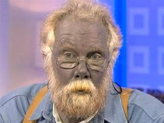 Paul Karason dies sept. 24, 2013.  he turned blue after he used colloidal silver to treat skin condition.