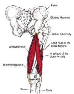 Proximal Hamstring Tendinopathy: A Real Pain in the Butt for Runners - James Dunne @ kinetic-revolution.com