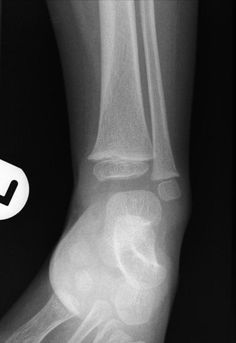 Toddler fractures are minimally or undisplaced spiral fractures usually of the tibia, typically encountered in (you guessed it) toddlers. They are believed to be the result of new stresses placed on the bone due to recent and increasing ambulation. Conventional radiographs are all that are required, but multiple views may be necessary as the fracture is often inapparent on one view. http://radiopaedia.org/articles/toddler-fracture