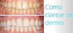 Como Clarear os Dentes - http://espacomulher.net/como-clarear-os-dentes/