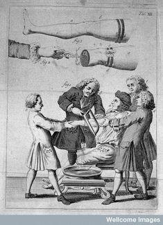 amputación de miembros, 1764.