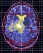 » Depression's Chemical Imbalance Explained - Psych Central News