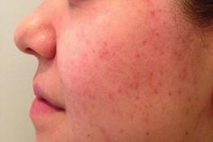 What is Good for Acne Scars?