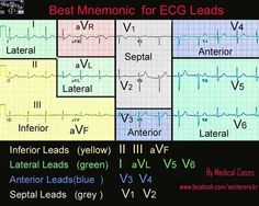 ECG Interpretation Made Easy Online