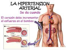 Inyecciones y presión arterial alta