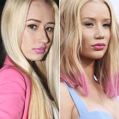 Nose Plastic Surgery, Botched Plastic Surgery, Celebrity Plastic Surgery, Nose Surgery, Iggy Azalea, Lip Job, Dental Veneers, Celebrities Before And After, Rhinoplasty