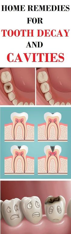 HOME REMEDIES FOR TOOTH DECAY AND CAVITIES #tooth #decay #cavities #homeremedies