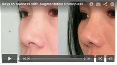 In this video, Dr. Buonassisi discusses the keys to success with augmentation rhinoplasty: http://8west.ca/rhinoplasty/keys-to-success-with-augmentation-rhinoplasty/?utm_campaign=coschedule&utm_source=pinterest&utm_medium=Dr.%20Buonassisi%20%7C%20Fiore%20Skin%20Clinic%20and%208%20West%20Cosmetic%20Surgery