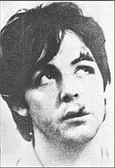 Paul-McCartney-moped-accident.jpg (270×394)