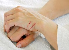 How to Treat Cat Scratches at Home | petMD
