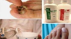 Os fungos que se alojam nas unhas causam um problema denominado onicomicose.Também chamada de tinha das unhas, é uma infecção que ataca as unhas tanto das mãos como