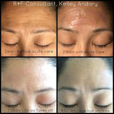 "I just became friends with Kelley Seto Andary, my Co-Consultant's overnight results with Acute Care!#justbeingreal  Fill a wrinkle while you sleep, no needle required!  ""I saw a wrinkle last night as I was brushing my teeth....actually, I saw more than 1!  So I pulled a few Rodan+Fields Acute Care Strips and put them on before I went to bed...  Just to be clear - you may not always get over night results - but man oh man...I DID!""  #sharingpersonalresults  Message me! Let's chat."
