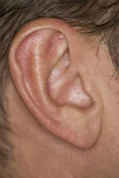 Tinnitus can wreak havoc on one's life. Though it is not an actual condition itself, it is a sign that another problem exists. If you are bothered by symptoms and are in desperate need of a tinnitus treatment, read on. Sound therapy is perhaps the most. Dry Skin Remedies, Home Remedies, Ear Blockage Remedies, Health Remedies, Ringing Ears Remedy, Ear Wax Buildup, Tinnitus Symptoms, Neck Exercises, Ear Wax Removal