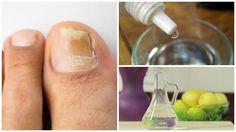 """Te compartimos la receta para preparar un """"rompe hongos"""" natural y casero para las uñas. ¡No dejes de probarlo!"""