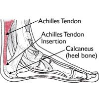 Achilles Tendinitis - Symptoms, causes, prevention and treatment | Runner's World