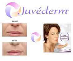 Juvederm is one of the best fillers in the industry. Look at the before and after results! #Cincinnati