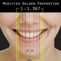 . The ratio 1 to 1.618 . The Golden Proportion Rule has been applied to facial aesthetics and cosmetic dentistry to provide a mathematical guideline for the creation of aesthetically pleasing smiles. In order to achieve the best aesthetic result, the Golden Proportion Rule must be changed or adapted for each patient.Modifying the Golden Proportion RuleNatural teeth rarely
