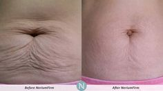 NeriumFirm Really Does Reduce the Appearance of Cellulite and More!